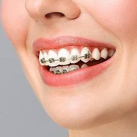 Fonksyionel Ortodontik Tedaviler